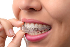 woman with invisalign, dental braces tx