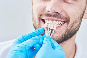 man showing teeth with whitening chart, dental veneers tx