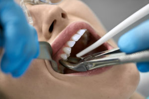 woman getting a tooth extraction